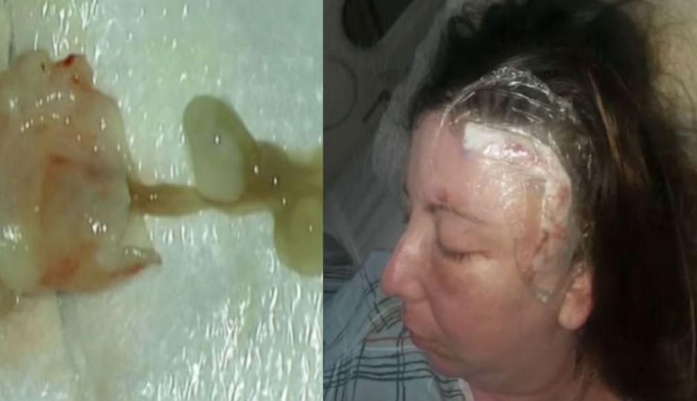 En enero del 2008, Rachel Palma, una habitante de Nueva York, notó un cambio en su salud: sin explicación dejaba caer objetos y empezó a olvidar palabras.