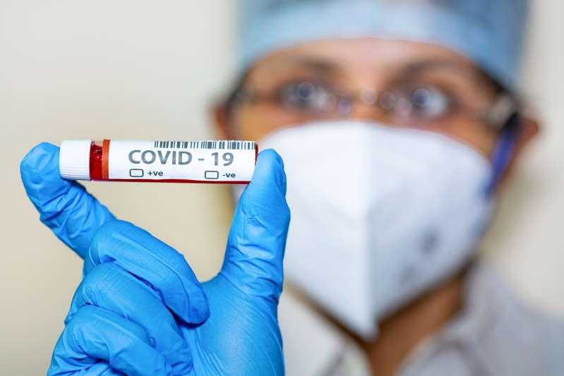 Superan los 8 millones de contagios por coronavirus en el mundo