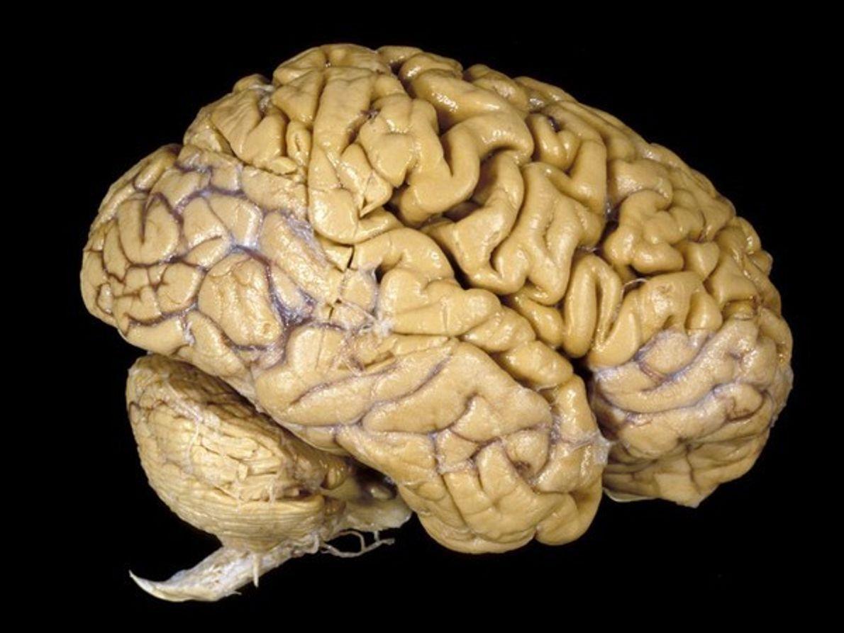 Hoy se celebra el Día Mundial del Cerebro: conoce los daños cerebrales. Fuente externa.