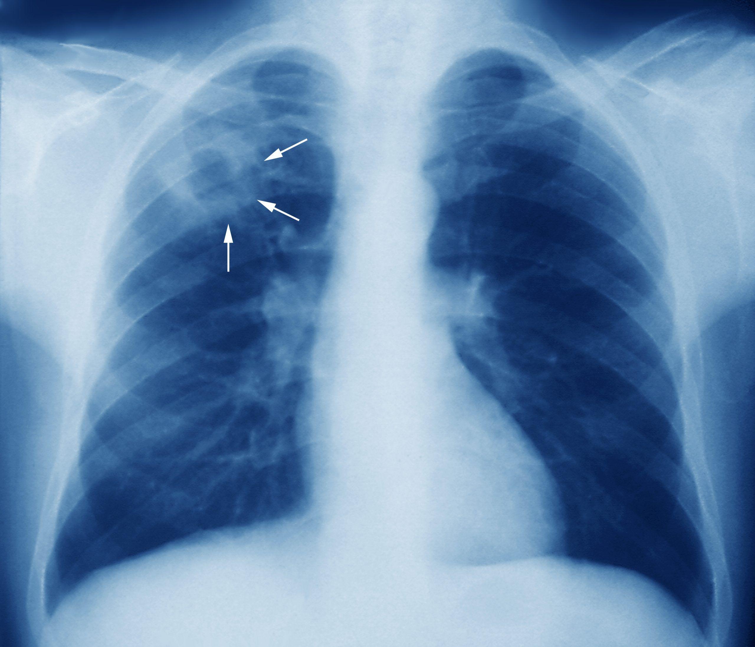 SNS tiene 88 millones para la tuberculosis. Fuente externa.
